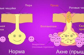 Симптомы акне